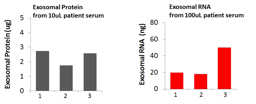 cancer exosome biomarkers, exosomes cancer