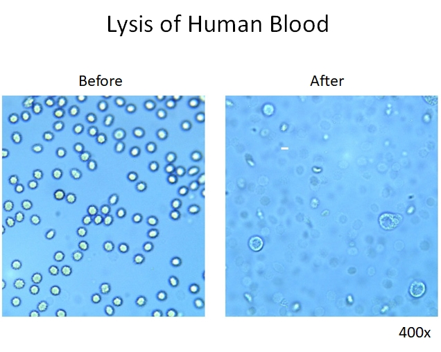 Red Blood Cell Lysis, ACK Lysing Buffer